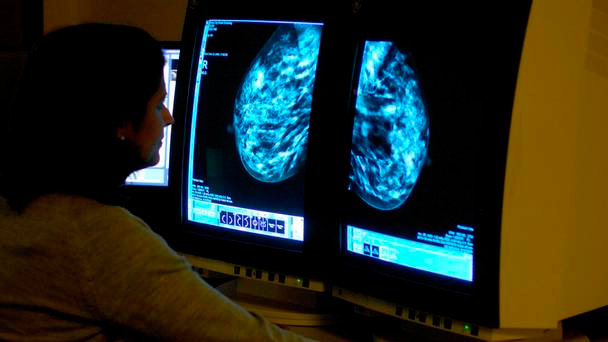 triple-negative-breast-cancer